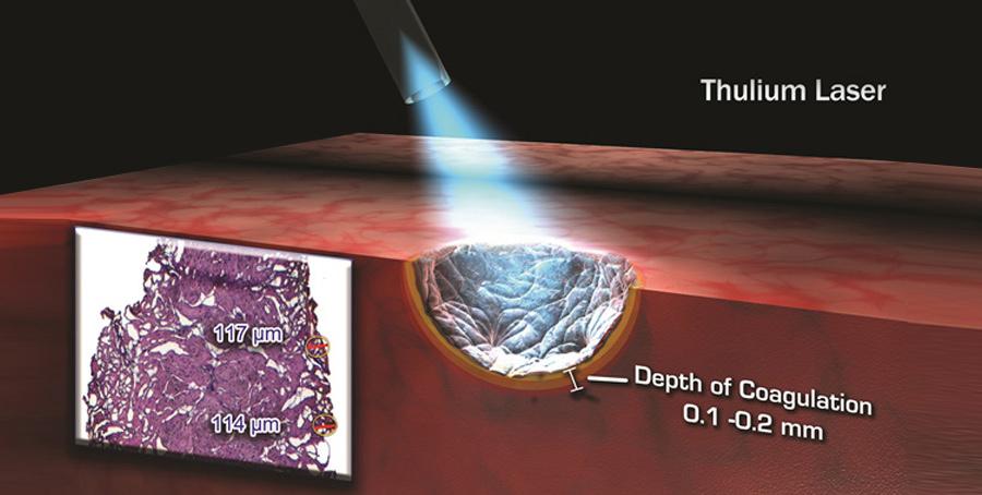 prostata laser al tullio più laser ad olmioli